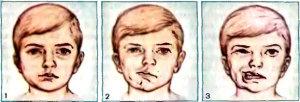 porazhenie-licevogo-nerva