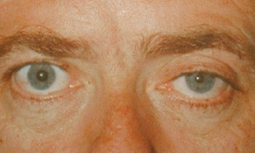 horners-syndrome-pictures